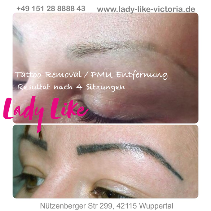 PMU-Entfernung Permanent Make-up Entfernen Tattoo Remover
