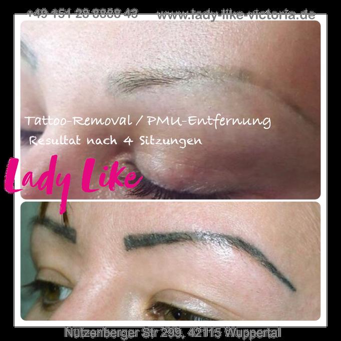 Entfernung von Permanent Make-up