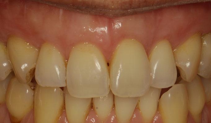 歯茎の再生治療後の状態