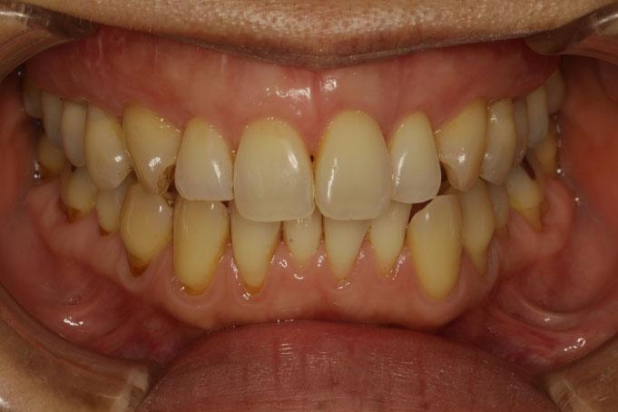 歯茎の再生治療の症例