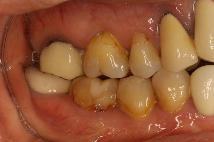 長い差し歯の治療法