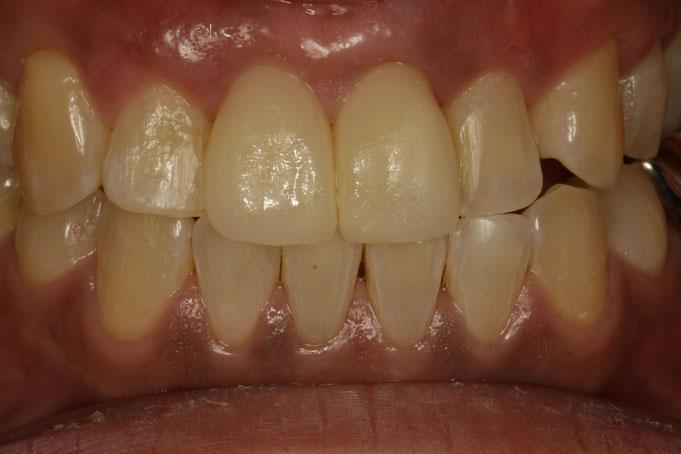 歯茎を引き締めたあとに前歯の差し歯を交換しました