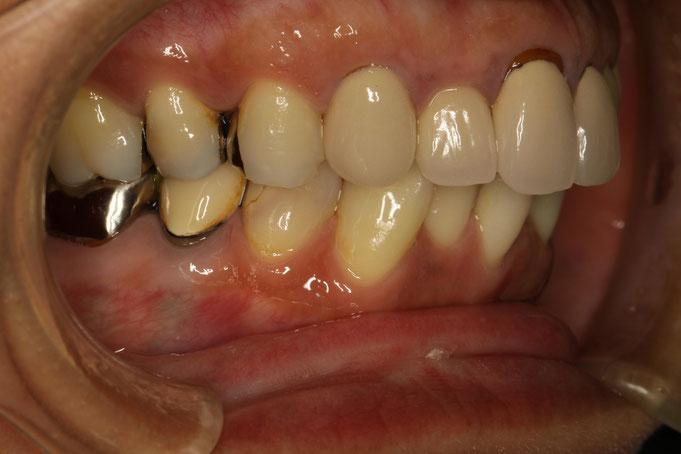 歯ぐきの再生治療前の状態