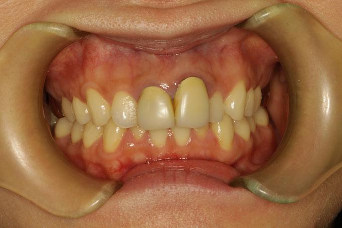 長くなってしまった差し歯の治療