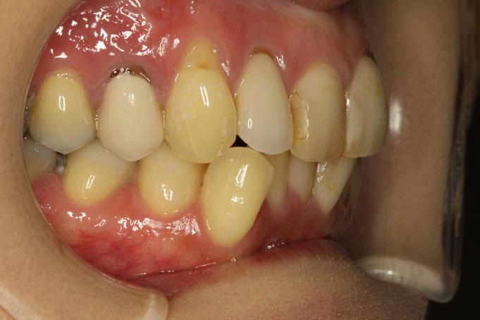 歯茎再生治療の治療前