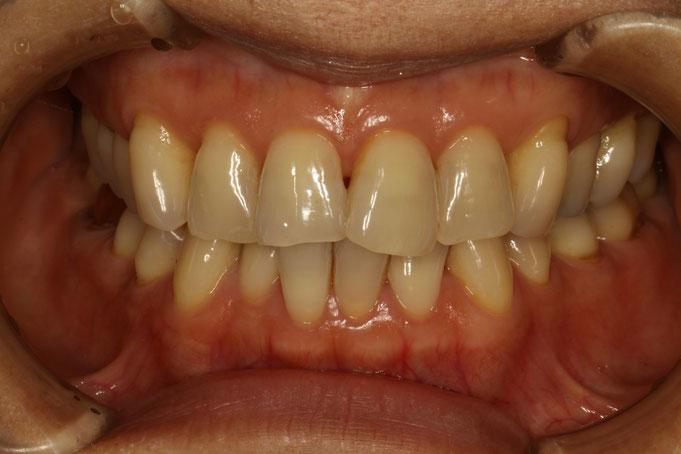 上の前歯の歯茎が全体的に下がってきてしまっています