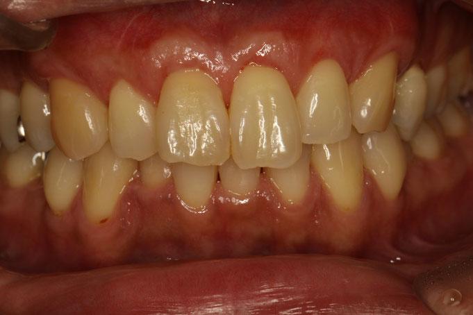 前歯の歯茎と審美歯科