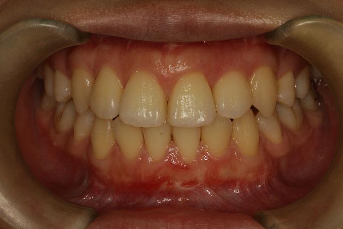 歯の大きさを小さくしたいというご希望の場合の歯ぐき再生