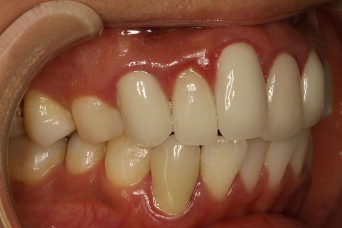 差し歯の歯茎再生