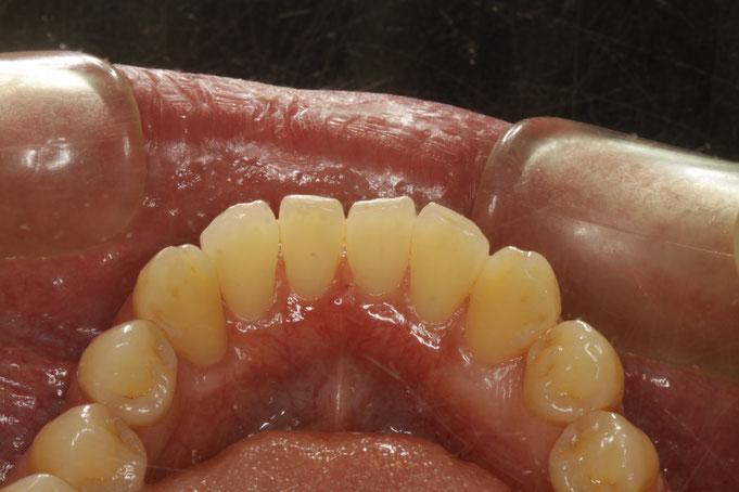 下の前歯の裏側の歯茎が下がってしまった時の歯茎の再生治療