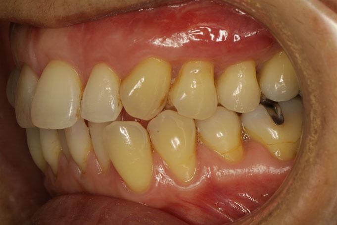 上の歯の歯茎の再生治療