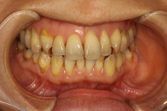 全体的に歯茎が下がってしまっています。