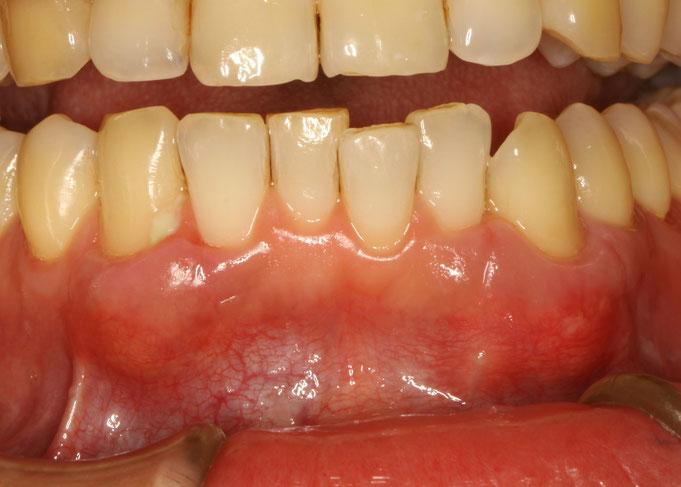 きれいな歯ぐきの再生治療