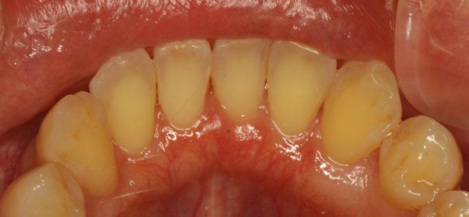 歯茎が薄く、ほんの少し歯茎が下がり始めています