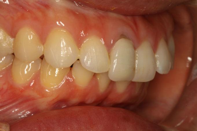 差し歯の歯茎が下がってしまって黒ずみが目立ってきています。