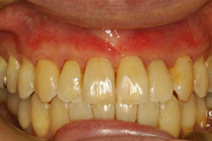 歯茎の再生治療後の歯茎の状態。