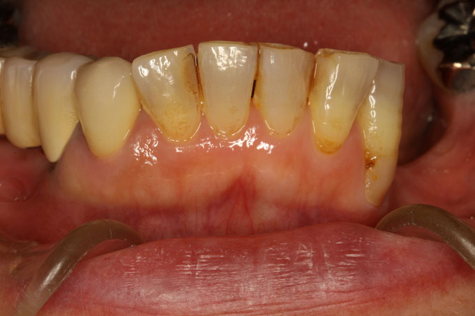 犬歯の歯茎が下がったケース