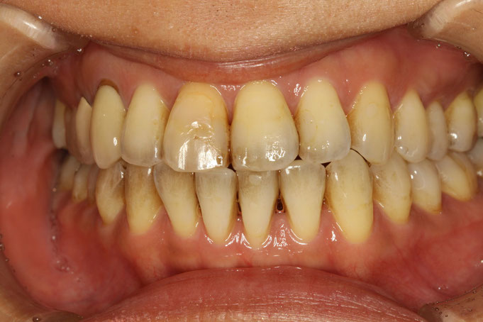 歯と歯の間の隙間と表側の歯茎の退縮