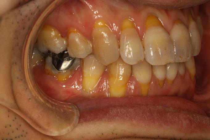 歯ぐきが下がる