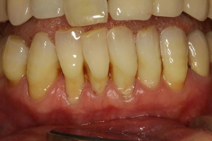 重度の歯周病で歯茎が下がってしまった場合