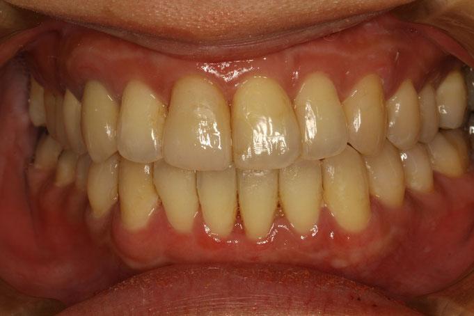 歯と歯の間の隙間および歯茎の退縮の治療後の状態