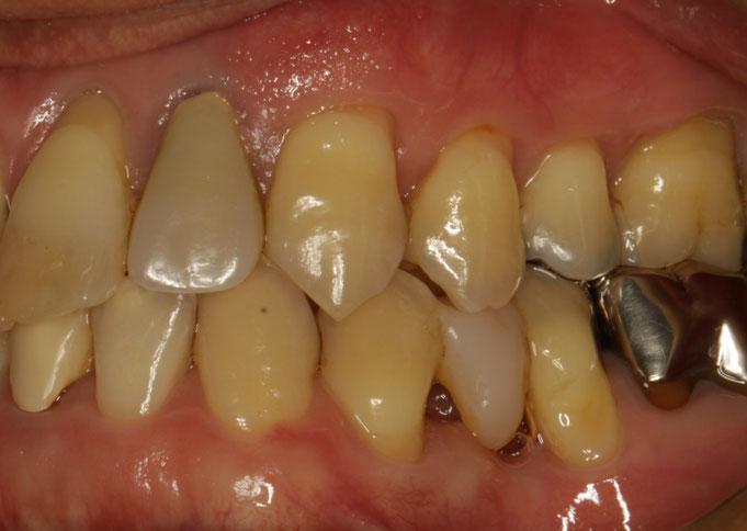 犬歯の歯茎が再生しています。