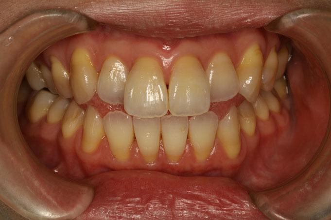 下の前歯の歯茎の付け根の部分が黒く見える
