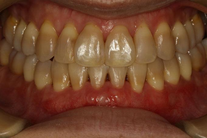 歯茎の厚みが増したのと歯茎の位置が回復
