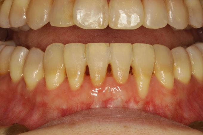 歯がゆれてしまっている場合は、お写真のように、歯と歯の間を接着剤でしっかりと止めて歯の揺れを押さえた上で歯茎の再生治療を行います。