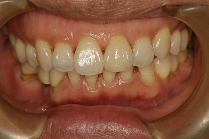 矯正治療前に歯茎の下がってしまっている部分の歯茎を再生させます。