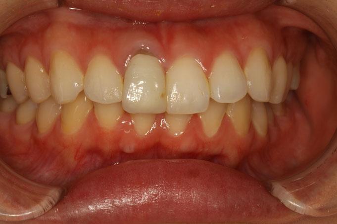 差し歯の歯茎が下がって黒く見えてしまっています