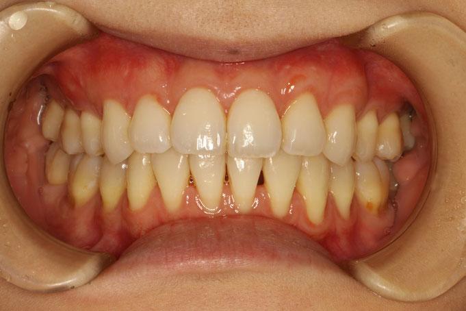 うずく 歯茎