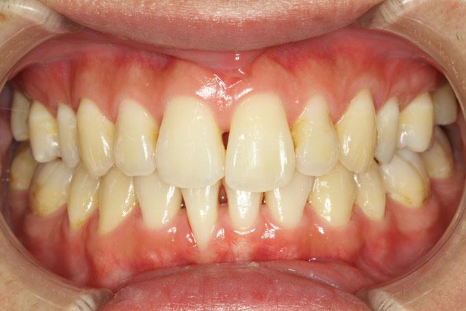 歯と歯の間の隙間