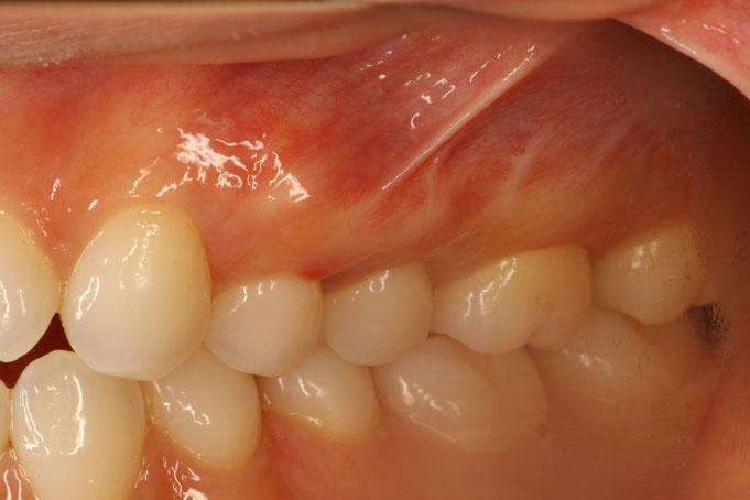下がってしまった歯茎を歯ぐきの再生治療