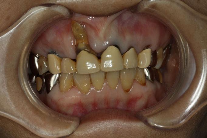 歯茎が下がってしまう