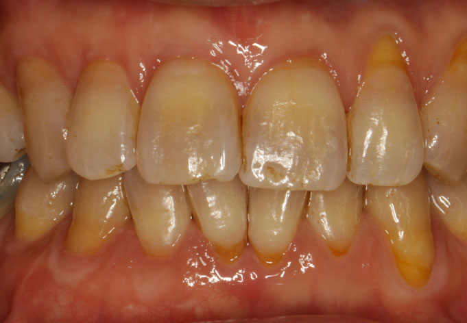 上下6本の歯茎の再生治療を行っています。