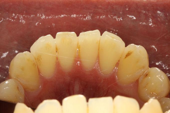 下の前歯の裏側の歯茎が薄く、ほんの少し歯茎が下がり始めてしまっています。