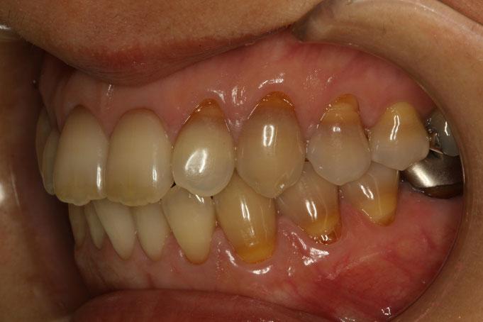変色した歯の歯ぐきの再生治療