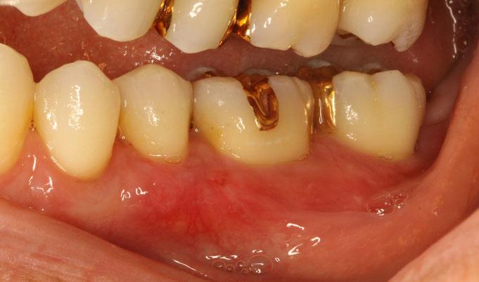 奥歯の歯ぐきの再生治療後の状態