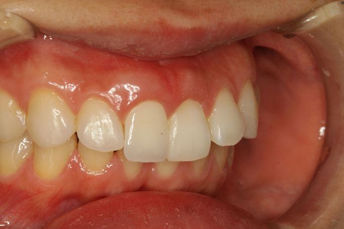 歯茎の黒ずみの問題も解消されました。