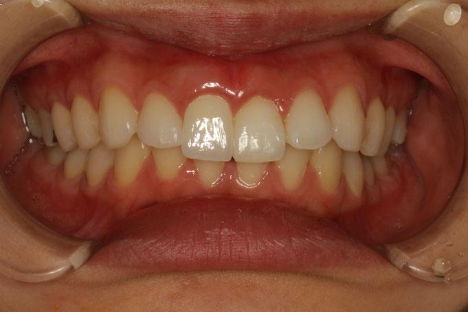 差し歯の歯茎が下がって黒く見えたときの歯ぐき再生