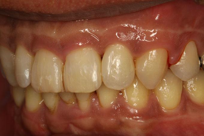 歯と歯の間の隙間をレジンで埋める