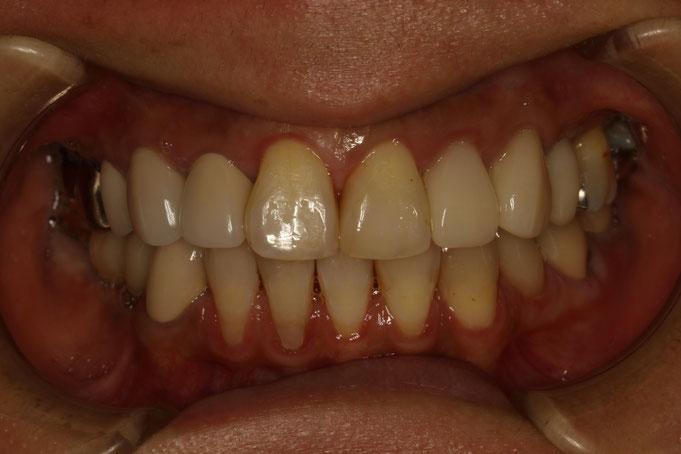 下の歯茎が下がっています
