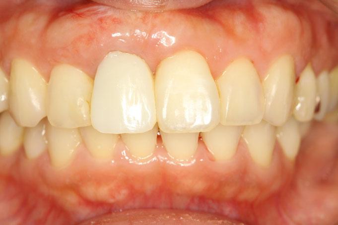 インプラントの歯茎の再生2回目