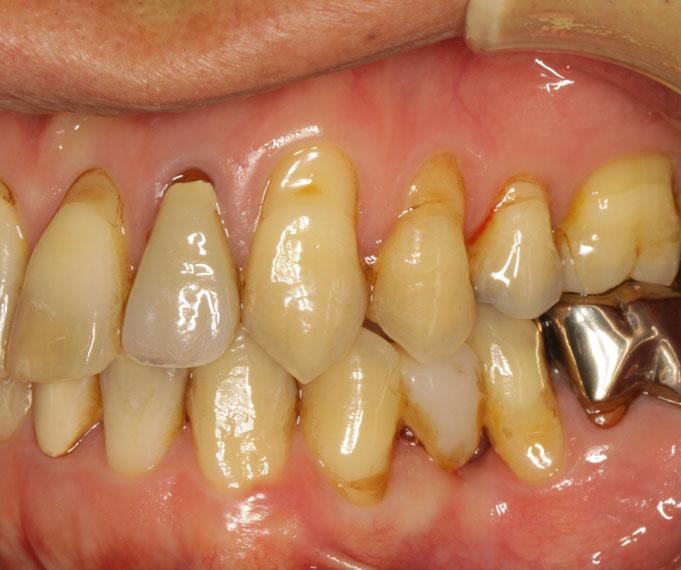 全体的に歯茎が下がってしまっています