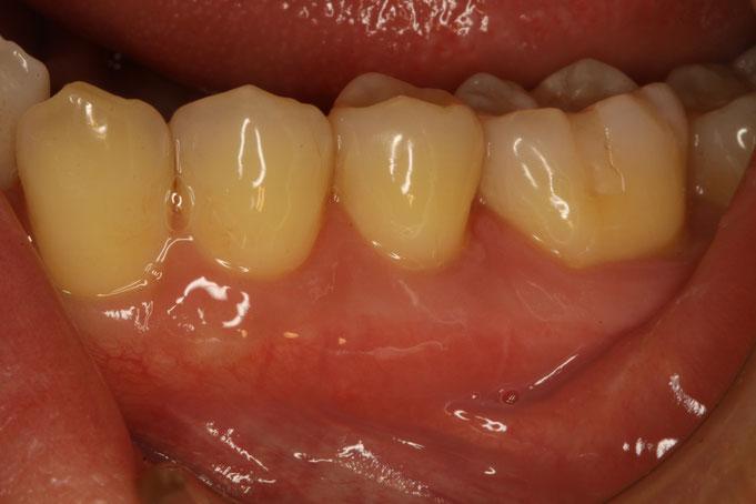 歯ぐきの再生治療で覆いました