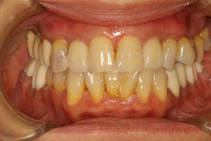 前歯の歯茎が回復したことで見た目が改善しました.