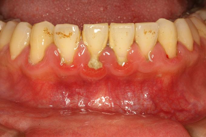 歯石がついて歯茎が腫れてしまっている場合