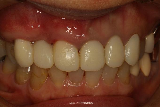 下がった歯ぐきを回復させる