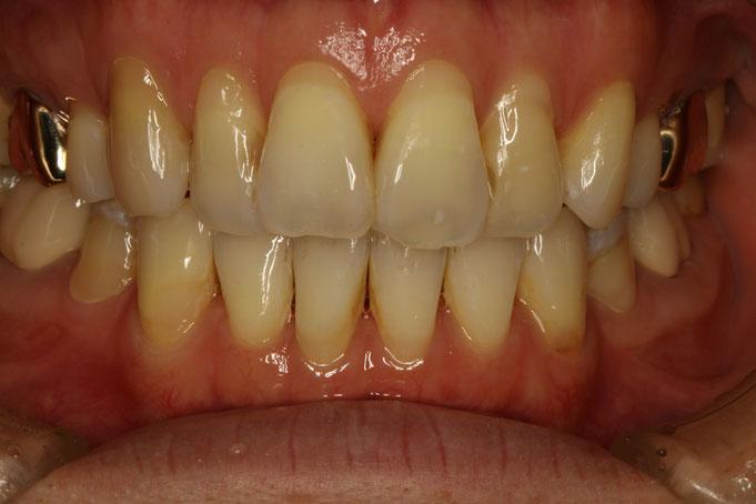 歯ぐきの再生治療の流れ
